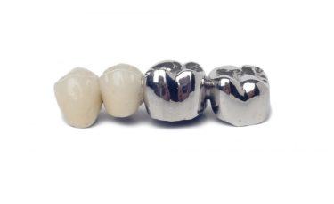 歯科金属アレルギーの原因になる金属と代替素材を徹底解説