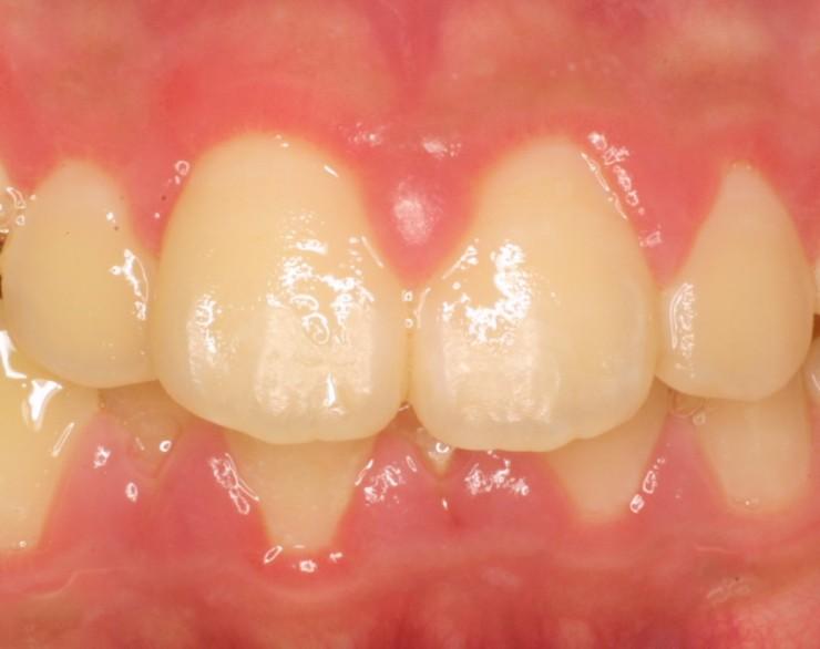 1-1歯茎腫れ