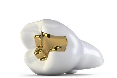 知っておくべき!歯の詰め物(インレー)の種類や特徴