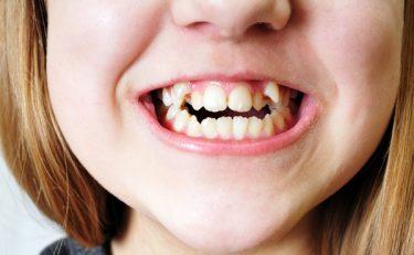 八重歯はチャームポイント?矯正歯科医が教える八重歯の全て