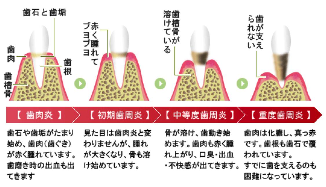 1-1.歯周病セルフチェック