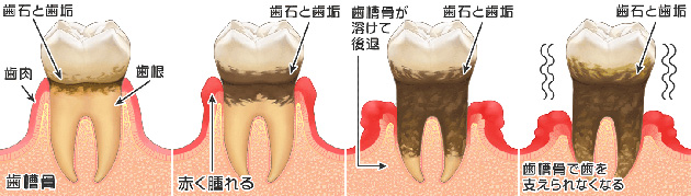 periodontal_disease_about1