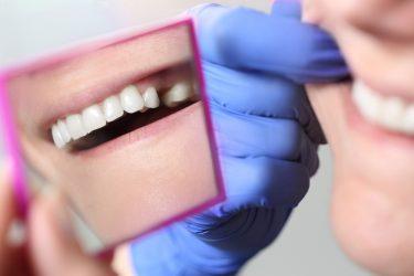 小臼歯に起こるトラブルや抜歯、矯正治療について徹底解説