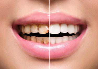 歯のステイン(着色汚れ)を効果的に除去する方法と予防法